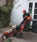 Square thumb stump removal london